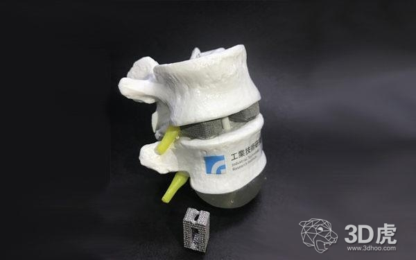 台湾工研院将于2018年推出3D打印仿生植入物
