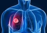 非小细胞肺癌或许能转变成为另外一种亚型