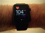 聊聊智能手环的三种监测人体心率方式