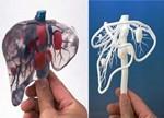 训练医生与服务患者 3D打印医疗模型双向发展