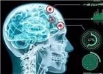 7类医生对医疗人工智能的真实使用反馈