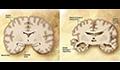 AI诊断又有新算法,让人们提前10年知道自己是否会老年痴呆