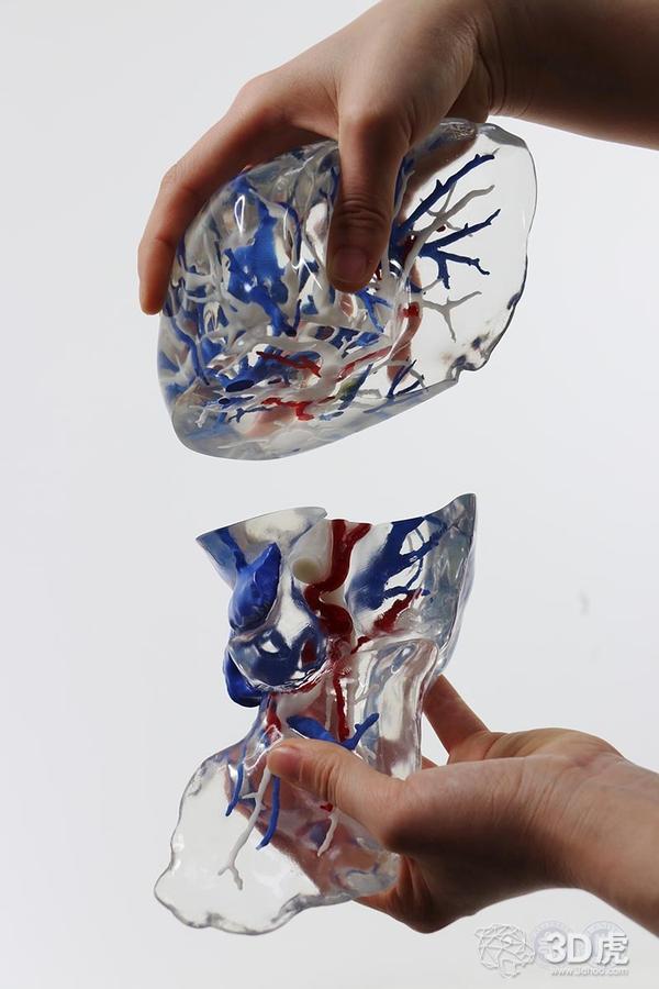 河北大学附属医院开发低成本、高精度的3D打印肝脏模型新方法