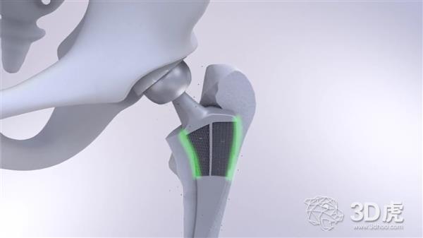 TU Delft推出使用独特性能创新混合生物材料的3D打印髋关节植入物