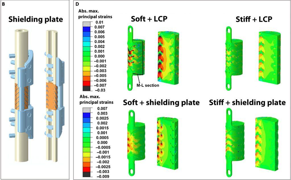 研究发现3D打印的钛支架比目前的骨移植治疗更好
