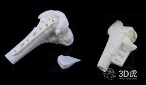 KCE发布3D打印高风险医疗设备框架和概述的报告