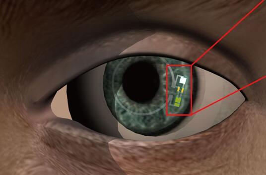 谷歌之后,又来一款血糖传感智能隐形眼镜