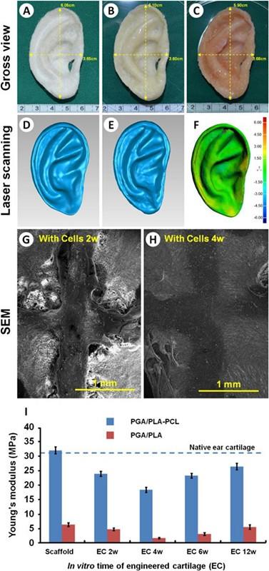 中国科研人员使用3D打印和组织工程构建人造耳朵