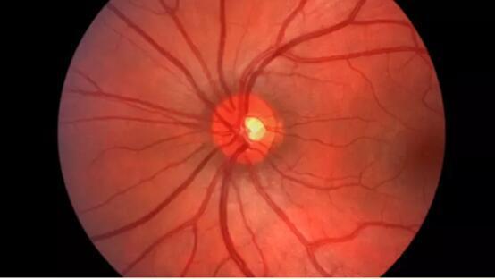 谷歌DeepMind开发人工智能可有效检测眼疾