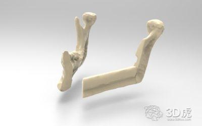 雷尼绍与医院合作 提供3D打印指南和下颌骨种植体