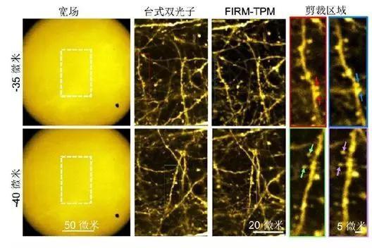 超快光纤激光助力微型双光子显微成像系统研究