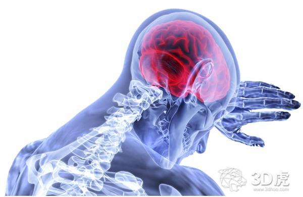 科学家使用生物3D打印脑结构研究神经退行性疾病治疗