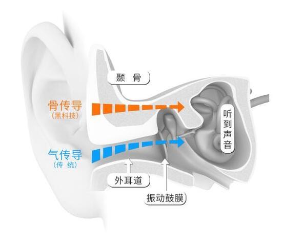双重聆听体验将成潮流?骨传导耳机迎来新春