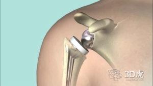 Materialise推出全新的虚拟手术预先计划系统和肩部手术3D打印指南