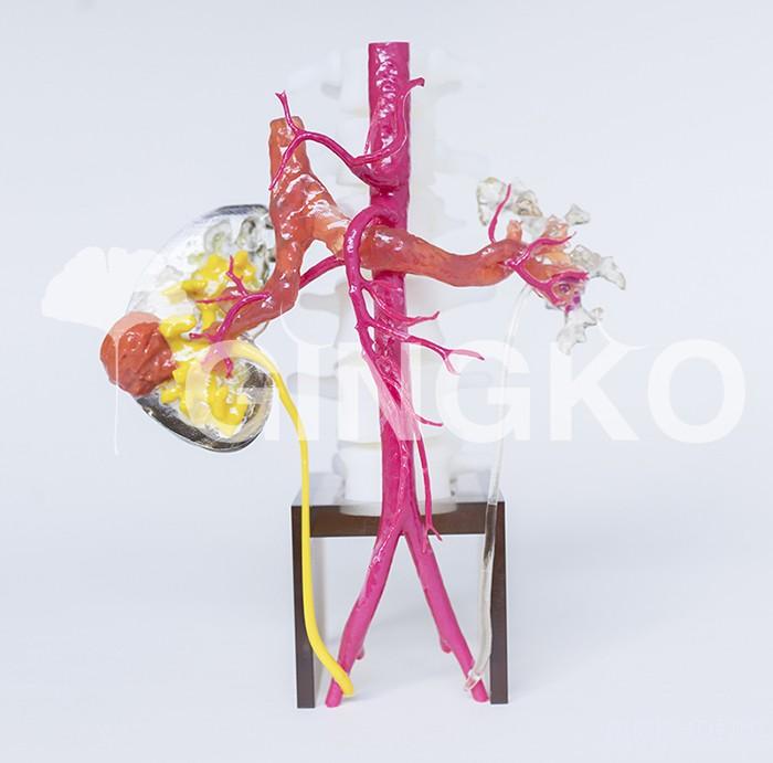 8000元一套3D打印肾肿瘤模型 金玺银杏推出新型医疗产品