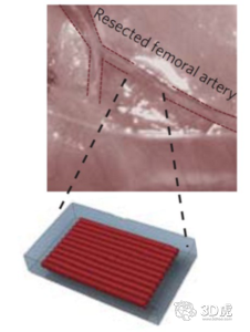研究员开发出治疗缺血性心血管疾病的3D打印贴片