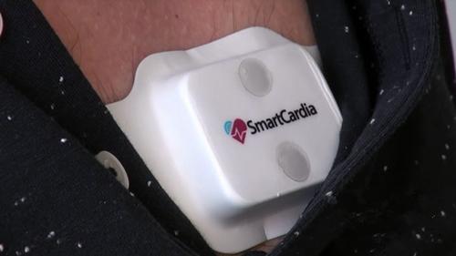 Smartcardia无线电子贴片将取代急诊监测仪器