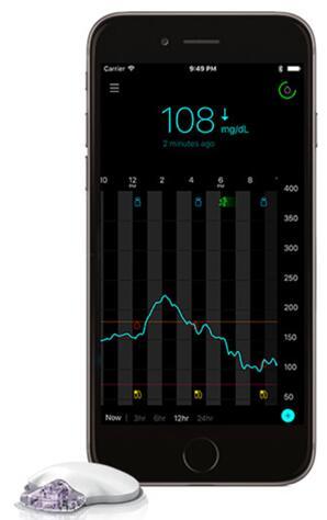 美敦力Guardian Connect动态血糖监测系统获FDA批准