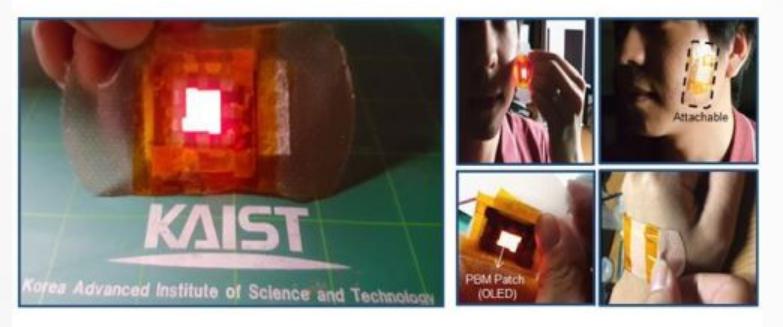 """韩国研究员发明""""OLED贴片"""",利用光来治疗伤口"""