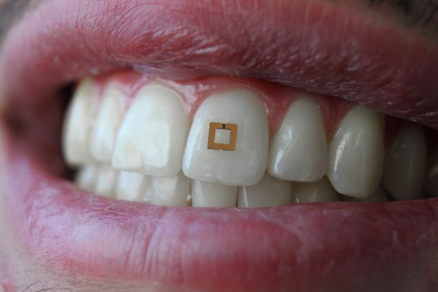 科学家开发出新型牙齿传感器 可测量糖、盐等的摄入量