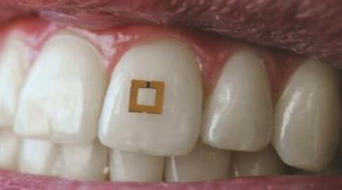 牙齿微型贴片传感器诞生 可自动检测进食状况