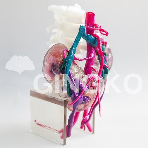 武汉银杏医疗推出全彩3D打印马蹄肾病例模型