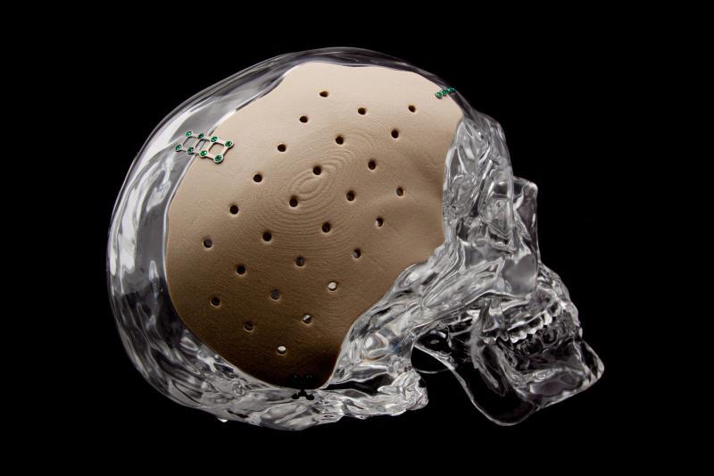 牛津高性能PEEK材料在日本获得3D打印植入物的医学认证