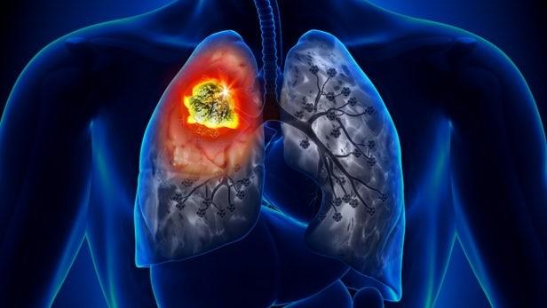 肺癌福音!新研究可成功靶向85%的肺癌!
