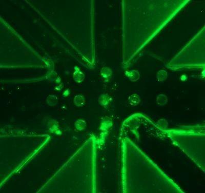 新型微传感器有助于个体化透析治疗