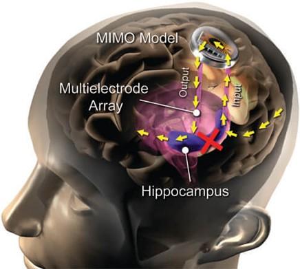 植入式大脑假体有助于保持新的记忆