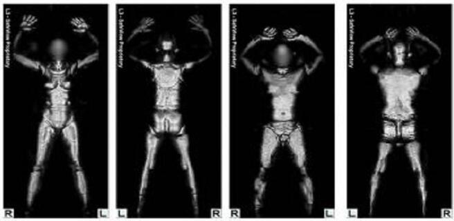 太赫兹辐射发射器:X射线扫描仪的安全替代品