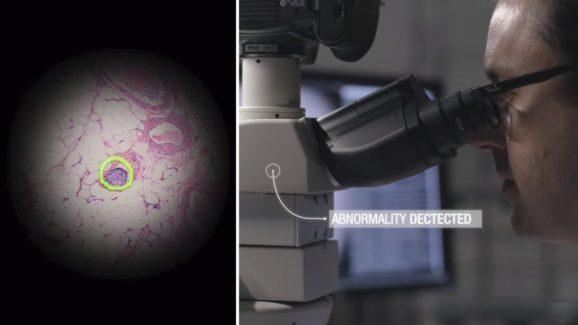谷歌推出AR显微镜 可利用机器学习技术迅速发现癌细胞