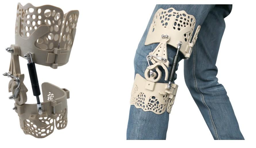 3D打印超轻型PEEK膝盖支架 保护提高行走能力