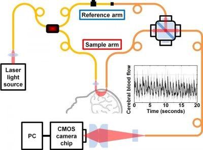基于低成本光谱技术的脑部血流量测量