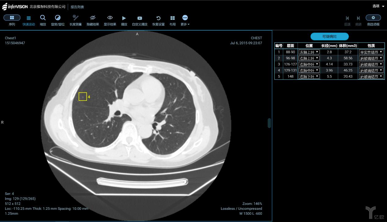 基于卷积神经网络的深度学习算法,在2012年以来逐渐成为医学变革的新动能。基于CT、MRI、X光、超声、热红外、细胞涂片、心电图等医学图像的智能辅助诊疗系统,在临床使用中已经被证明了有效性。  前不久