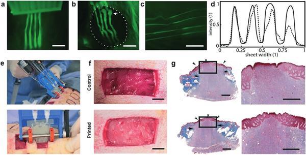 UoT开发手持皮肤3D打印机