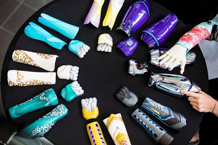 3D打印仿生假肢臂的第一个临床试验
