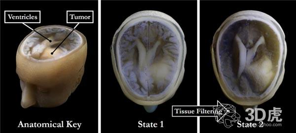 CT数据重建太慢?位图技术1小时内获得大脑的3D数据
