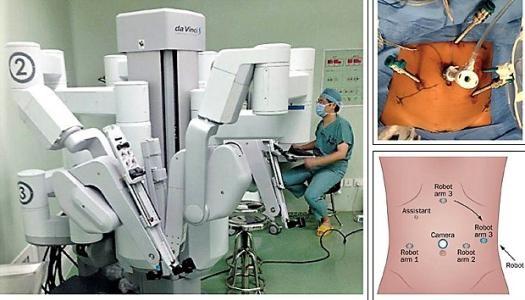 今日看点:手术机器人全球市场争夺战打响英雄联盟动画片4-玩意儿