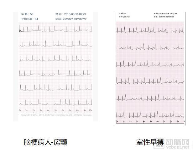 赋能心血管专科医联体,博迪加攻克慢病管理过程中的长时间心电数据采集难题