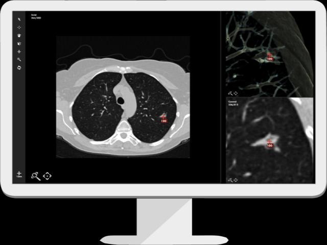 印度医疗AI初创公司,用AI和云计算辅助放射医生做诊断