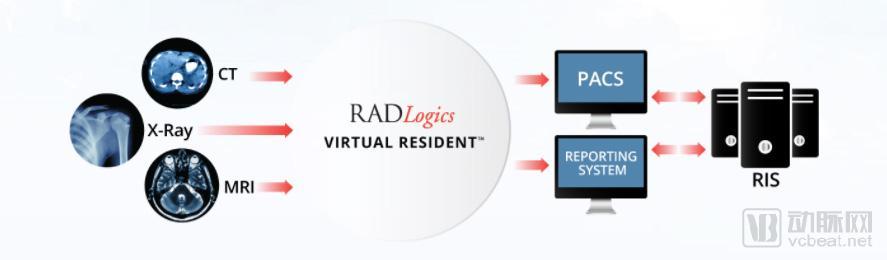 被两家亚洲集团联合收购,RADLogics的算法25秒可扫描2000张图像