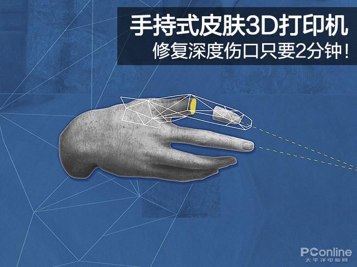 手持式皮肤3D打印机 修复深度伤口只要2分钟!