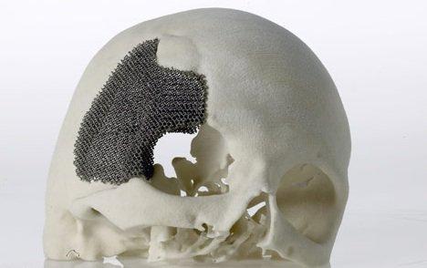 3D打印技术在生物医用材料产业应用展望