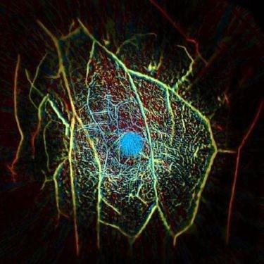 新研究!光声层析成像可在15秒内实现肿瘤细胞造影