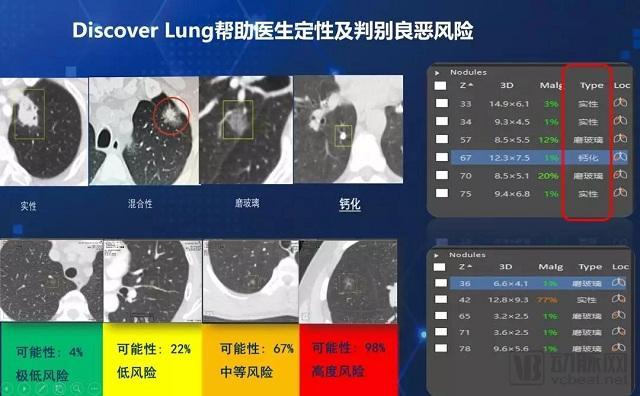 用全流程诊断产品推动浙江医疗AI发展,图玛深维做了哪些尝试?