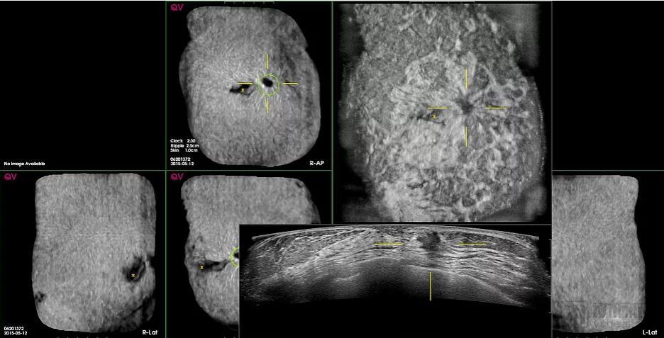 QView Medical运用AI升级CAD影像技术,使图像读取时间缩短了33%