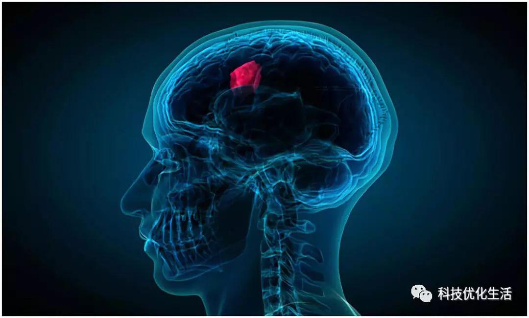 人工智能之AI如何改变癌症治疗