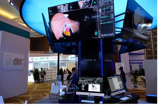 富士胶片发布SYNAPSE实现医学影像数据互联共享