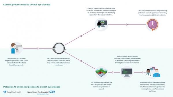 DeepMind这套AI系统可检测50余种眼疾,准确率高于眼科专家